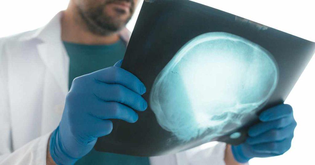 La Importancia de la evaluación neurocognitiva en el ámbito forense
